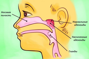 аденоиды у ребенка симптомы и лечение комаровский