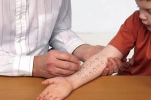 аллергический дерматит у ребенка симптомы и лечение