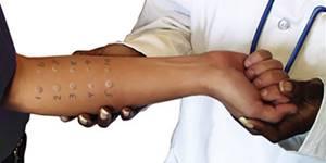 аллергия на ладошках у ребенка причины лечение симптомы