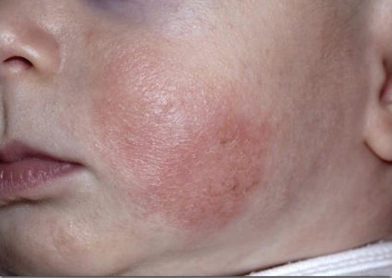 аллергия на солнце у ребенка симптомы лечение