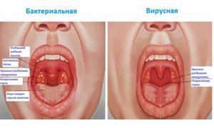 ангина у годовалого ребенка симптомы и лечение