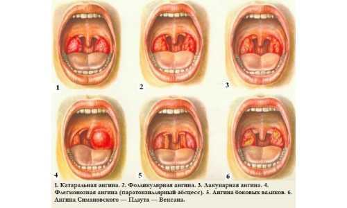 ангина у трехлетнего ребенка симптомы и лечение