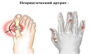артрит стопы у ребенка симптомы и лечение