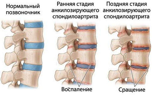 артрит у ребенка 2 лет симптомы и лечение