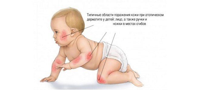 атопический аллергический дерматит у ребенка симптомы и лечение