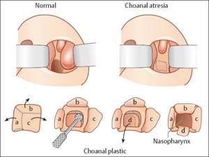 атрезия хоан у ребенка симптомы и лечение
