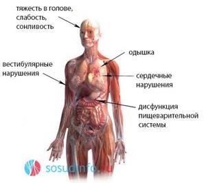 блуждающий нерв у ребенка симптомы и лечение