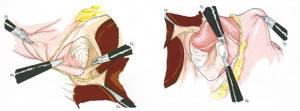 диафрагмальная грыжа симптомы и лечение у ребенка