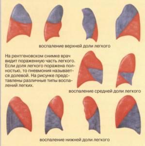двухсторонняя пневмония у ребенка симптомы и лечение