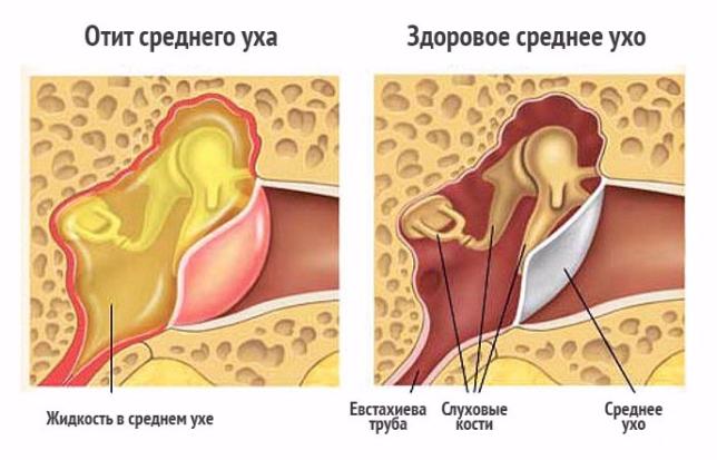 экссудативный отит симптомы и лечение у ребенка