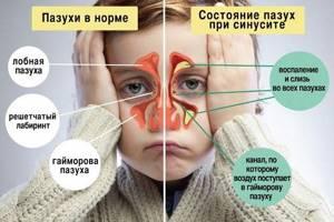 гайморит ребенок 4 года симптомы и лечение