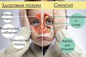 гайморит у ребенка симптомы и лечение комаровский