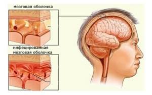 гемофильная палочка в носу у ребенка лечение и симптомы