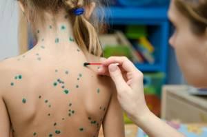 герпес у ребенка 3 года симптомы и лечение