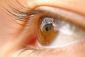 глазное давление у ребенка симптомы и лечение