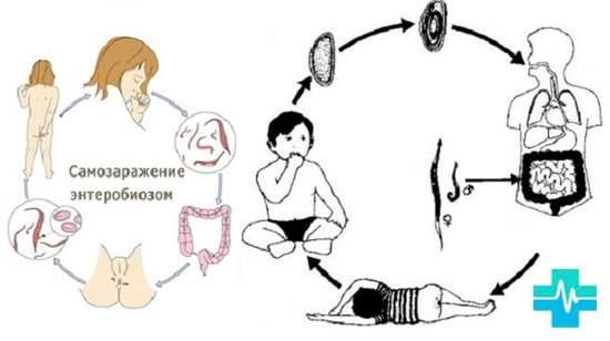 глисты у ребенка 4 года симптомы и лечение