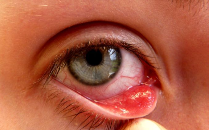 глисты у ребенка 8 месяцев симптомы и лечение