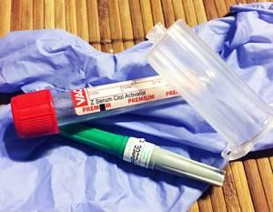 глисты у ребенка симптомы лечение таблетки