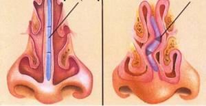 гребень в носу симптомы и лечение
