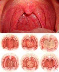 грибок горла у ребенка симптомы лечение