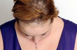 грибок кожи головы у ребенка симптомы и лечение