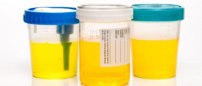 грибок в моче у ребенка причины симптомы лечение