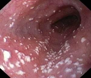 грибы кандида в кишечнике у ребенка симптомы и лечение