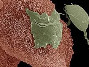 хламидии в горле у ребенка симптомы и лечение