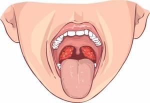 хронический тонзиллит симптомы и лечение у ребенка