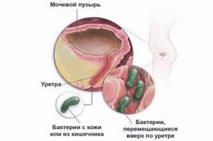 инфекция в моче у ребенка причины симптомы лечение