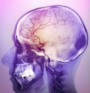 ишемия головного мозга симптомы и лечение у ребенка