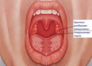катаральная ангина симптомы и лечение у ребенка