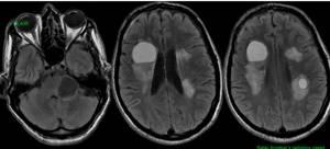 киста головного мозга симптомы и лечение у ребенка