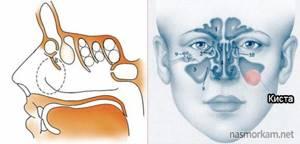 киста в гайморовой пазухе симптомы и лечение у ребенка