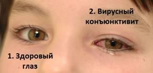 конъюнктивит у ребенка 5 лет симптомы и лечение
