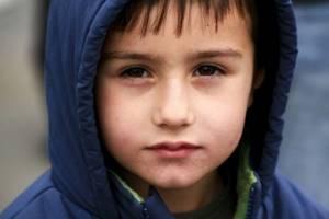 низкий гемоглобин симптомы у ребенка лечение