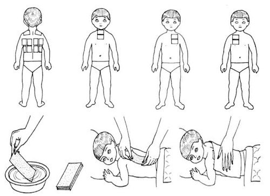 обструктивный бронхит у ребенка 3 лет симптомы и лечение