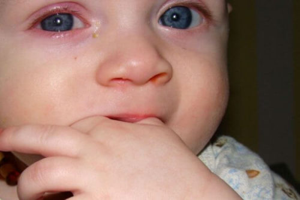 орви симптомы у ребенка 2 лет лечение