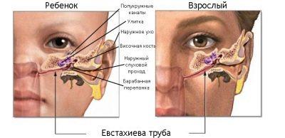 отит у ребенка 7 месяцев симптомы и лечение