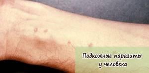 паразиты в организме ребенка симптомы и лечение народными средствами