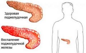 перегиб поджелудочной железы симптомы и лечение у ребенка