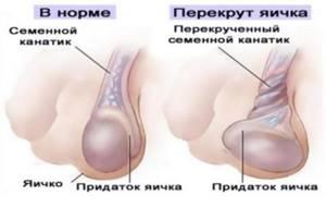 перекрут яичка симптомы у ребенка лечение