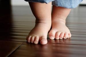 плоскостопие у ребенка 9 лет симптомы и лечение