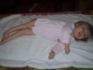 подвывих голеностопного сустава у ребенка симптомы и лечение