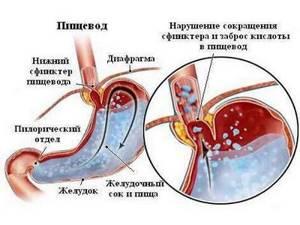 повышенная кислотность желудка симптомы и лечение у ребенка