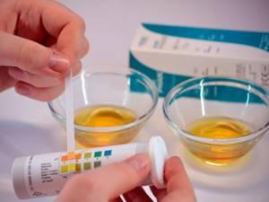 повышенный ацетон в моче у ребенка причины симптомы лечение