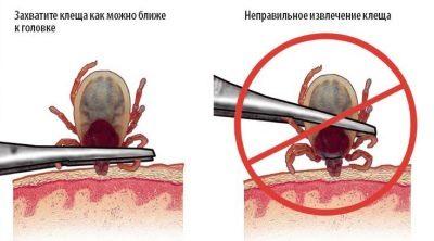 признаки укуса клеща у ребенка симптомы и лечение