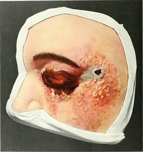 ребенок застудил голову симптомы и лечение