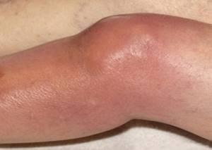 синовит коленного сустава у ребенка симптомы лечение