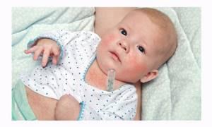 скарлатина у ребенка 3 года симптомы и лечение